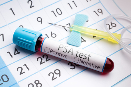 psa: blood sample in a tube with label PSA test on a monthly planner appointments  Blood test for analysis of PSA Stock Photo