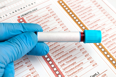 hand holding a tube labeled in white  hand holding Blood tests over medical report