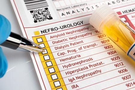 医師診断 urianalysis のフォームが充填医療患者医師の尿の分析のレポートを書く 写真素材