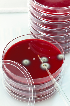 ecoli: many petri plate with pipette  petri dish with dropper