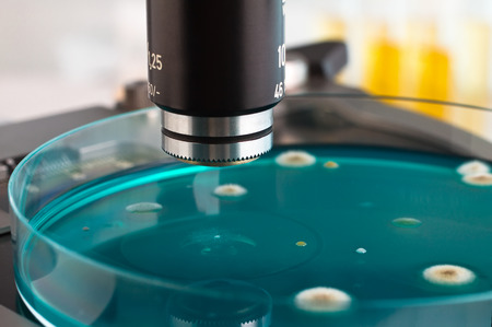 petri plate in micro on workbench of microbiology lab / detail of petri dish in the laboratory microscope Stock Photo