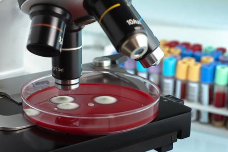 levadura: El análisis de micro de placa de Petri en el banco de trabajo del laboratorio de microbiología  placa de Petri bajo el microscopio en el laboratorio con tubos en el fondo
