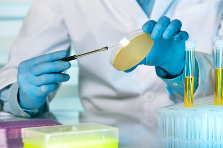 technician with loop and petri dish in the lab / Doctor making a urine culture in a petri dish