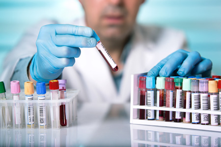 swordsmanship: doctor holds a blood sample tube in his hand testing in the laboratory  hands of a technician holding blood tube sample in the lab Stock Photo
