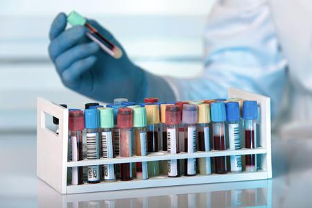 laboratorio clinico: bastidor con muestras de sangre recogida en el tubo de ensayo de laboratorio de retención  técnico de la muestra de sangre en el laboratorio clínico