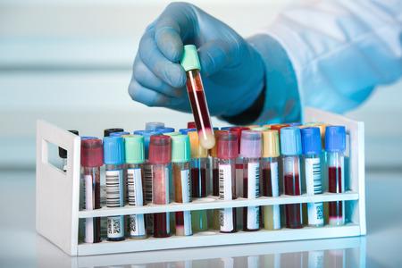laboratorio clinico: la mano del técnico que sostiene el tubo de la bandeja con muestras de sangre recogida en el laboratorio  de la mano que sostiene el tubo de bastidor con tubos de ensayo de laboratorio clínico en la sangre