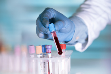 hands of a lab technician with a tube of blood sample and a rack with other samples / lab technician holding blood tube sample for study Фото со стока