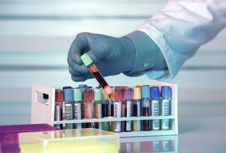 Médecin titulaire d'un tube de prélèvement de sang dans les tests de sa main dans la banque de sang de laboratoire / Technicien tenant échantillon de tube de sang dans la banque de sang Banque d'images - 60899057
