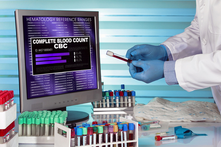 cbc: doctor analyzing blood sample in screen with software of analysis laboratory  test Complete Blood Count CBC. hands of technician in lab examining blood sample with computer with results