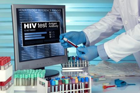 Techniker mit Blutprobe Test für die Analyse mit Software-Analysediagnose im Labor. HIV-Test. Techniker im Labor mit Berichten in der Computer-Untersuchung Blutprobe