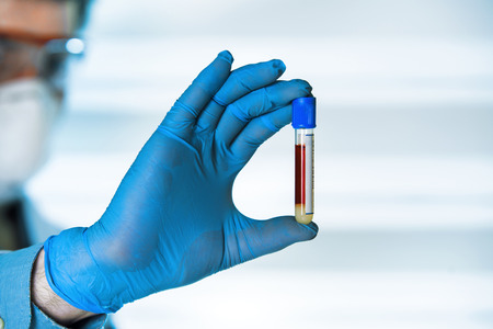 cbc: Technician with blood sample for analysis  laboratory technician in lab examining blood sample