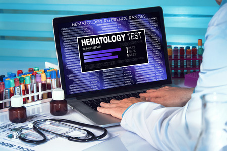 cbc: technician with blood sample and screen with software of analysis laboratory  Hematology Test. doctor in lab examining blood sample in laptop with results