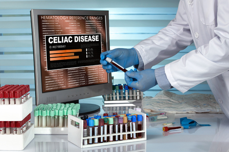 celiac disease: doctor with blood sample and text Celiac disease in the software of analysis laboratory  Technician in lab examining blood sample with Celiac disease results in computer Stock Photo