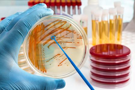 Colonias de bacterias Streptococcus agalactiae en placa de cultivo / placa de agarre de mano con colonias bacterianas de Streptococcus agalactiae Foto de archivo - 78268492