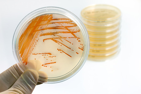 holding plate with bacterial colonies of Streptococcus agalactiae  Colonies of bacteria Streptococcus agalactiae in culture medium plate Stock Photo