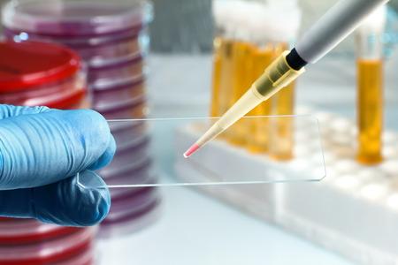 Technicus voorbereiding monster in glijbaan voor microscoop  Hand van de lab technicus die een dia houdt en een monster deponeren