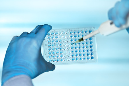 hands of scientist in the biochemical lab with pipette and multiwells plate / technician pipetting plate multiwell in the laboratory
