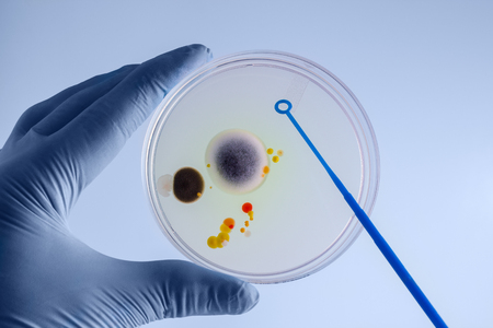 Hands of technician streaking and inoculating plate in the laboratory  hands of the laboratory technician collecting a sample from a petri dish Stock Photo