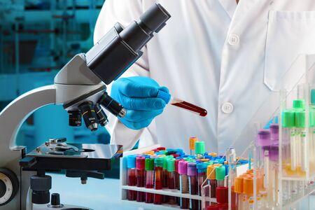 Médico con muestra de tubo de sangre para su estudio en el laboratorio de microbiología / técnico de laboratorio con prueba de tubo de sangre para análisis en el microscopio en el laboratorio del hospital