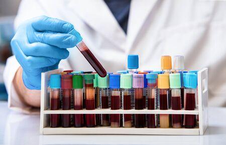 혈액 은행에서 혈액 샘플 튜브를 작업하는 분석/기술자를 위한 임상 실험실에서 혈액 튜브를 가진 의사 스톡 콘텐츠