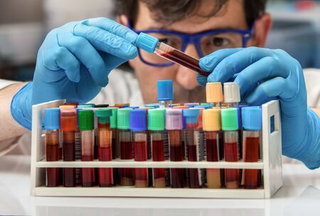 doctor with blood sample to analyze in the preanalytical laboratory / technician holding a blood sample tube for analysis in the lab