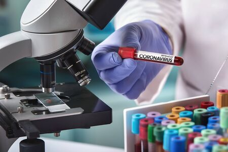 microbiologist with a tube of blood contaminated by Coronavirus and a sample of it analyzed under a microscope / doctor in the laboratory with a blood tube for analysis and sampling of Coronavirus under the microscope Stok Fotoğraf