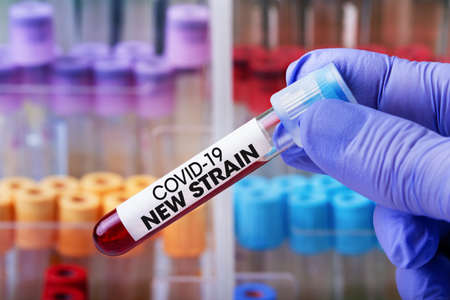 Doctor in the lab holding a tube of blood identified with the label Covid-19 New Strain / Laboratory Technician with a blood sample with a new variant of the Coronavirus
