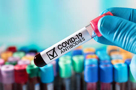 Doctor with a blood tube with antibodies for infectious disease Coronavirus covid-19 virus or Sars-Cov-2 / Lab Technician with an antibody blood tube from a cured Covid-19 patient Standard-Bild