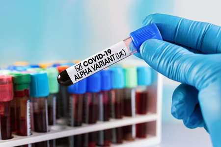 Technician holding tube of blood test identified with the label Covid-19 ALPHA Variant UK. Doctor with positive blood sample for the new variant detected in UK of the coronavirus strain called ALPHA Standard-Bild