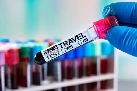 Blood tube labeled with the name Covid-19 Coronavirus Test, Travel Yes or No. Serological Blood analysis of patient for covid-19 antibodies test that will validate him for a trip