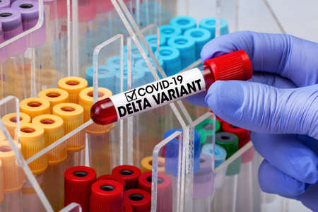 Doctor testing with blood test tube from patient infected with Coronavirus covid-19 virus Delta variant. Doctor epidemiologist holding blood tube for test detection of virus Covid-19 Delta Variant with positive result