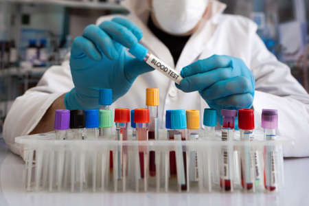 Doctor analyzing blood samples in analysis laboratory. Laboratory Technician Using Tube Rack With Patient Blood Samples