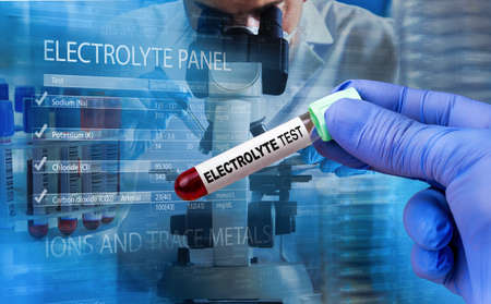Technician with blood sample for electrolyte imbalance test. Protocol with values of range of results. Blood sample for analysis and measurement of electrolyte and carbon dioxide levels in the patient. Standard-Bild