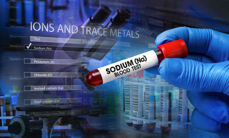 Biochemist with blood tube and hematology analyzer equipment and screen with data of Hemogram and Reference values. Doctor with blood tube of a patient for analysis named Sodim (Na) Blood test Standard-Bild