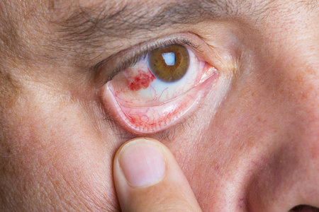Red bloodshot eyes in a middle aged man Фото со стока - 50548611