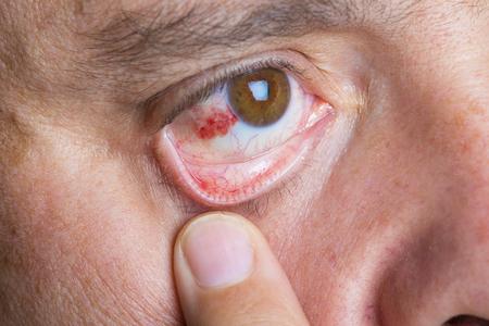 bloodshot: Red bloodshot eyes in a middle aged man