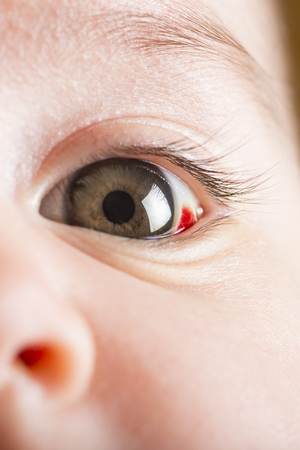 bloodshot: Red bloodshot eyes in a two months old baby Stock Photo