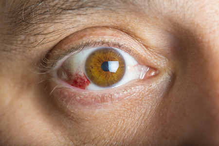 Red bloodshot eyes in a middle aged man