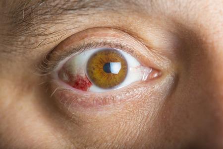 hemorragia: ojos inyectados en sangre rojas en un hombre de mediana edad Foto de archivo
