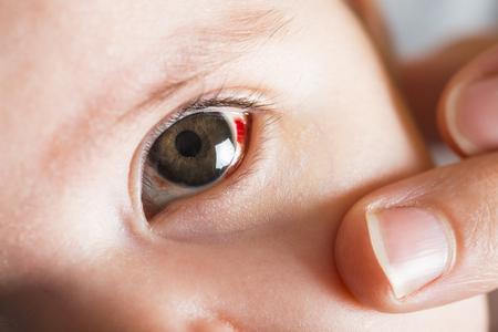 Red bloodshot eyes in a two months old baby Standard-Bild