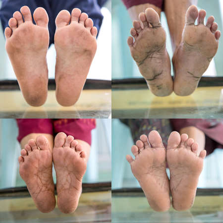Diabetic foot collection, foot screen in diabetes patient