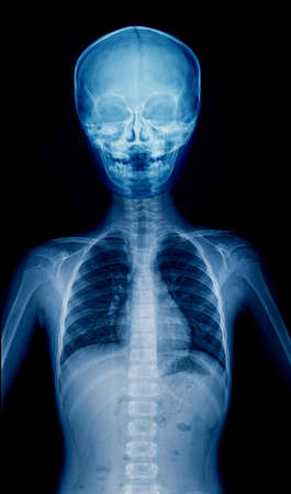 X-ray child upper part of body, hight quality film of child Stock Photo