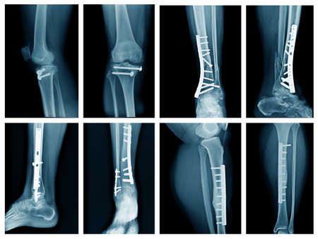collection leg x-ray with internal fixation, high quality xray leg fracture with post operation fix bone