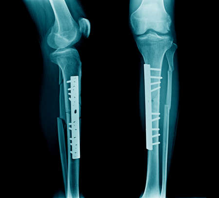 fracture jambe les deux os avec post-fixation tibia os