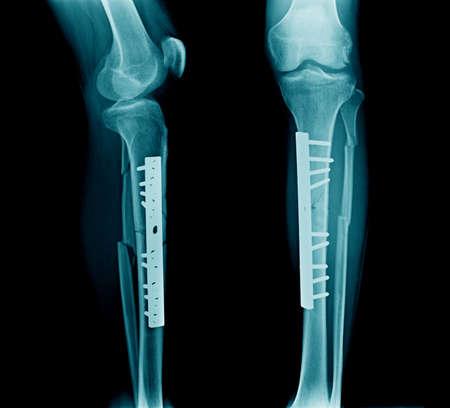 fracture leg both bone with post fixation tibia bone