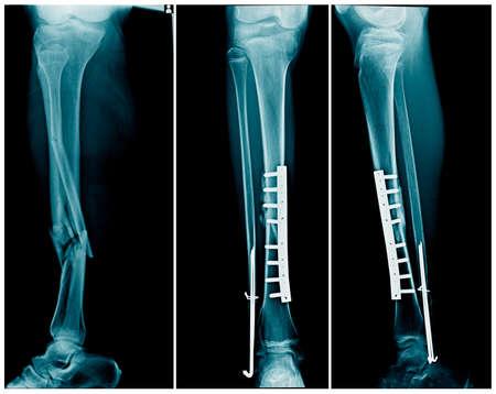 Fracture de jambe aux rayons X avec fixation interne post-opératoire os du tibia