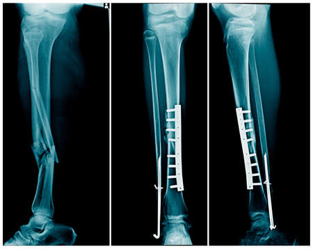 x-ray leg fracture with post operation internal fixation tibia bone