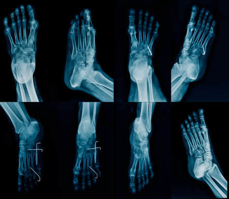 collection foot x-ray multi view, high quality foot x-ray with k-wine fixation