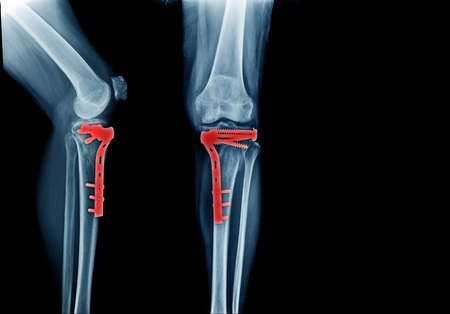 fracture tibia bone and post operation fixation anterior and lateral view x-ray Stock Photo