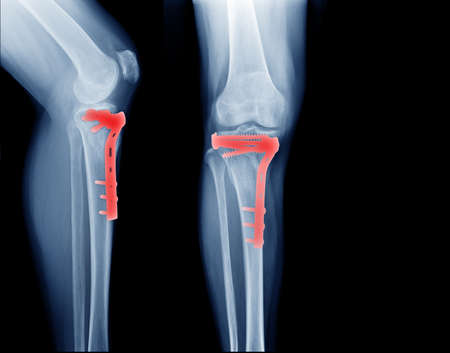 fracture tibia bone and post operation fixation anterior and lateral view x-ray Imagens
